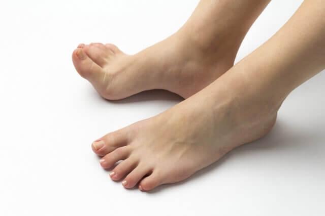 外反母趾の痛み